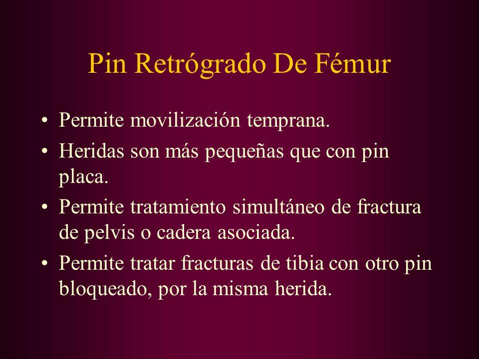Pin Retrógrado De Fémur