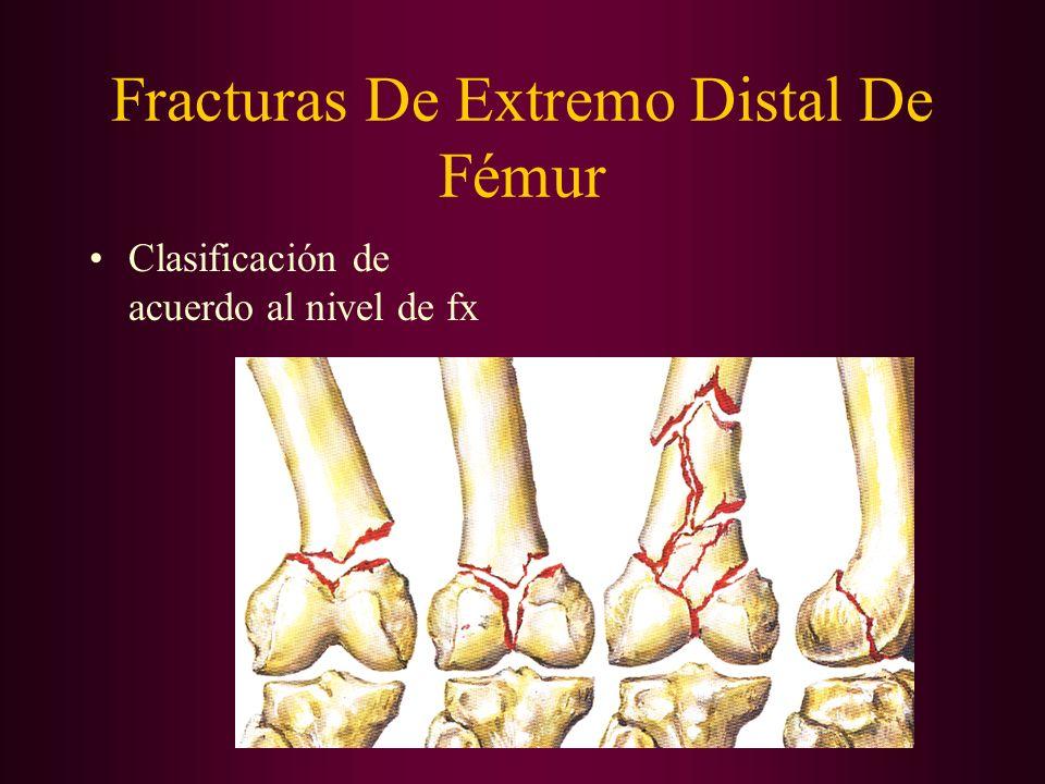 Fracturas De Extremo Distal De Fémur