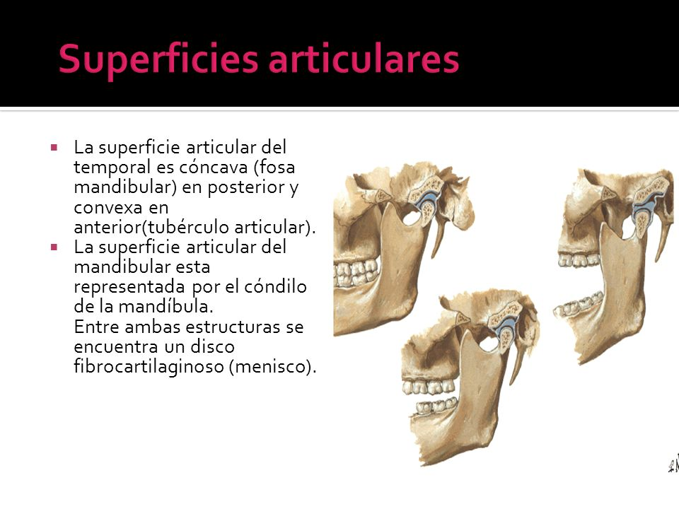 Superficies articulares
