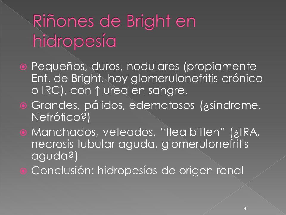 Riñones de Bright en hidropesía