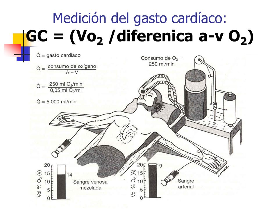 Medición del gasto cardíaco: GC = (Vo2 /diferenica a-v O2)
