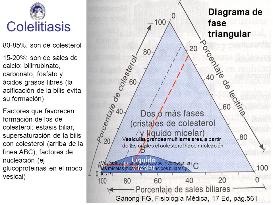 Colelitiasis Diagrama de fase triangular 80-85%: son de colesterol