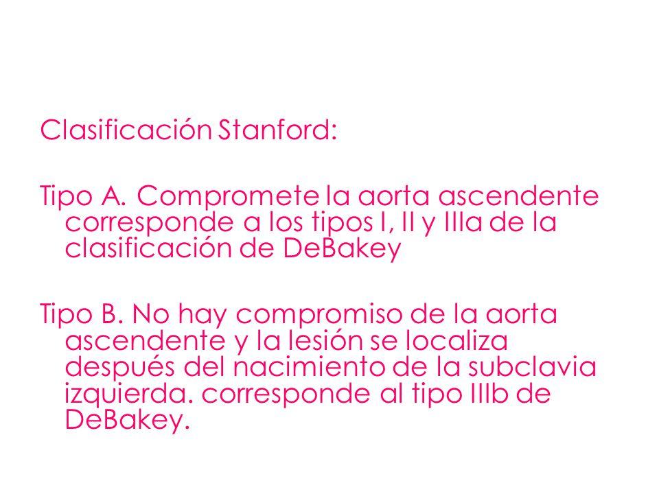 Clasificación Stanford: Tipo A