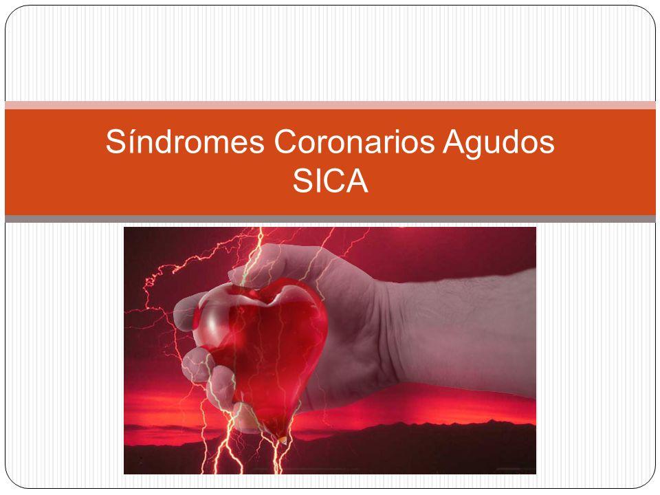 Síndromes Coronarios Agudos SICA
