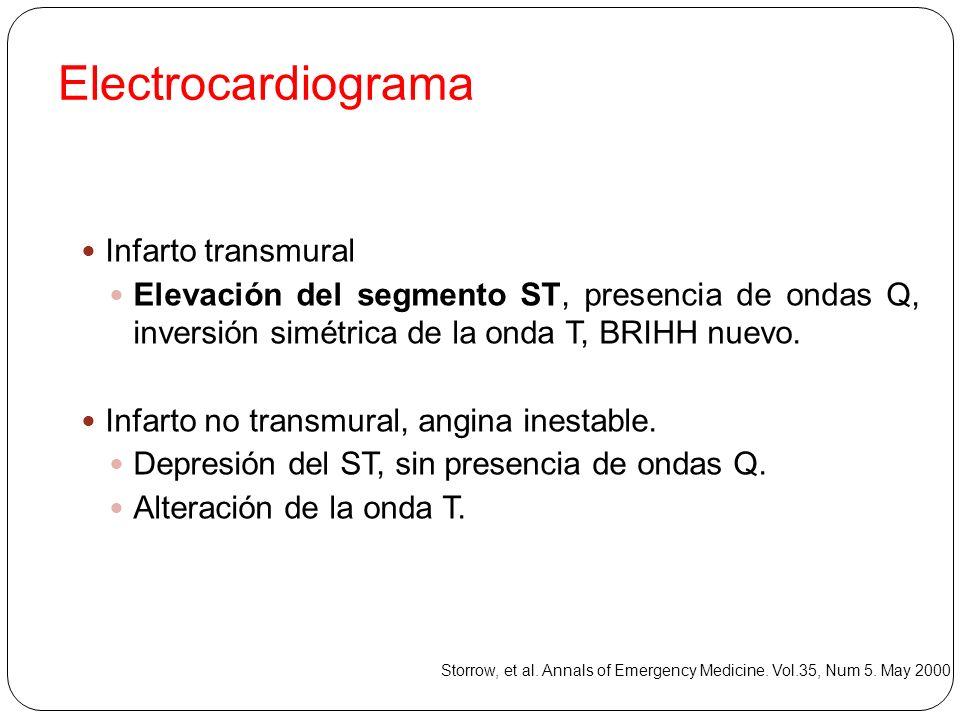 Electrocardiograma Infarto transmural
