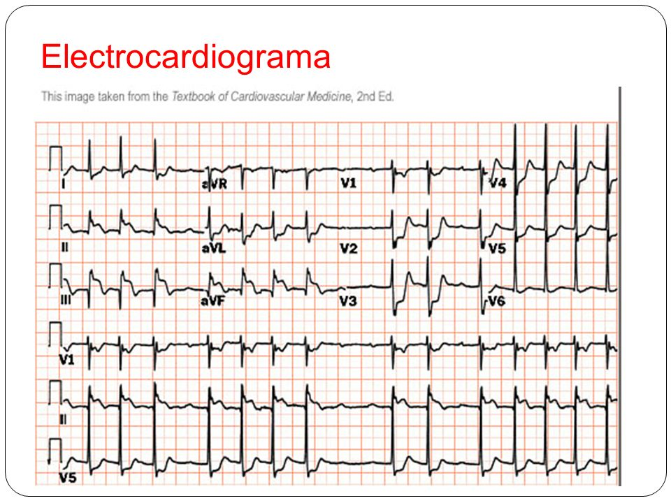 Electrocardiograma 1.- LESIÓN SUBENDOCARDICA ANTERIOR