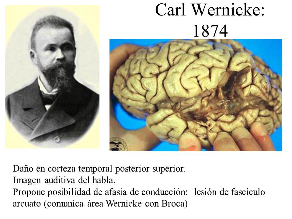 Carl Wernicke: 1874 Daño en corteza temporal posterior superior.