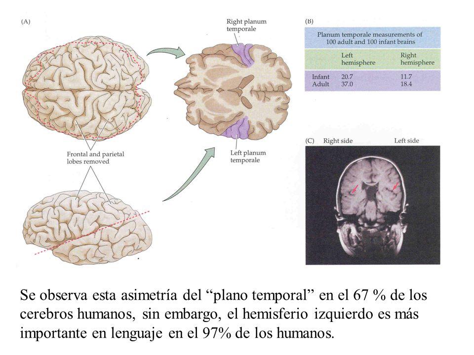 Se observa esta asimetría del plano temporal en el 67 % de los cerebros humanos, sin embargo, el hemisferio izquierdo es más importante en lenguaje en el 97% de los humanos.