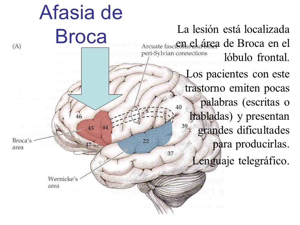 Afasia de BrocaLa lesión está localizada en el área de Broca en el lóbulo frontal.