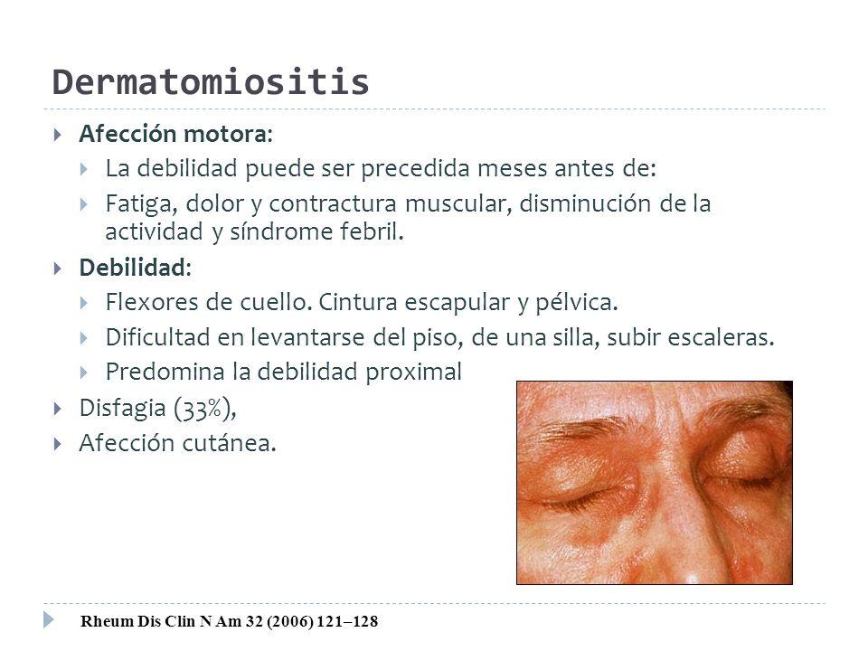 Dermatomiositis Afección motora: