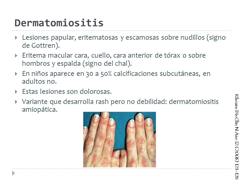 Dermatomiositis Lesiones papular, eritematosas y escamosas sobre nudillos (signo de Gottren).