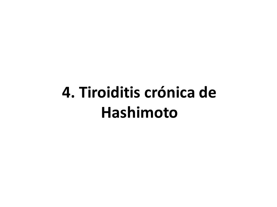 4. Tiroiditis crónica de Hashimoto