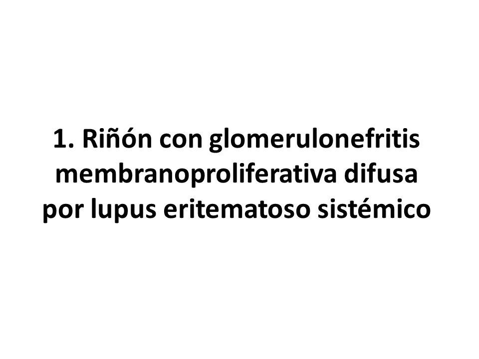 1. Riñón con glomerulonefritis membranoproliferativa difusa por lupus eritematoso sistémico
