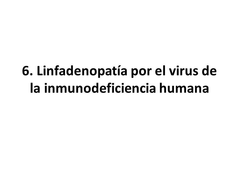6. Linfadenopatía por el virus de la inmunodeficiencia humana