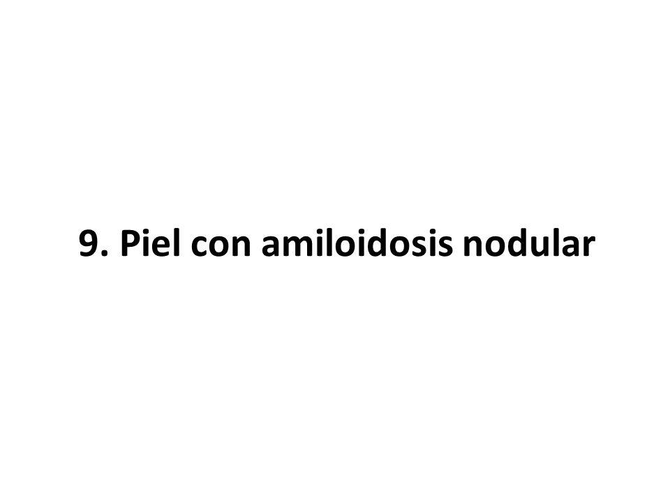 9. Piel con amiloidosis nodular