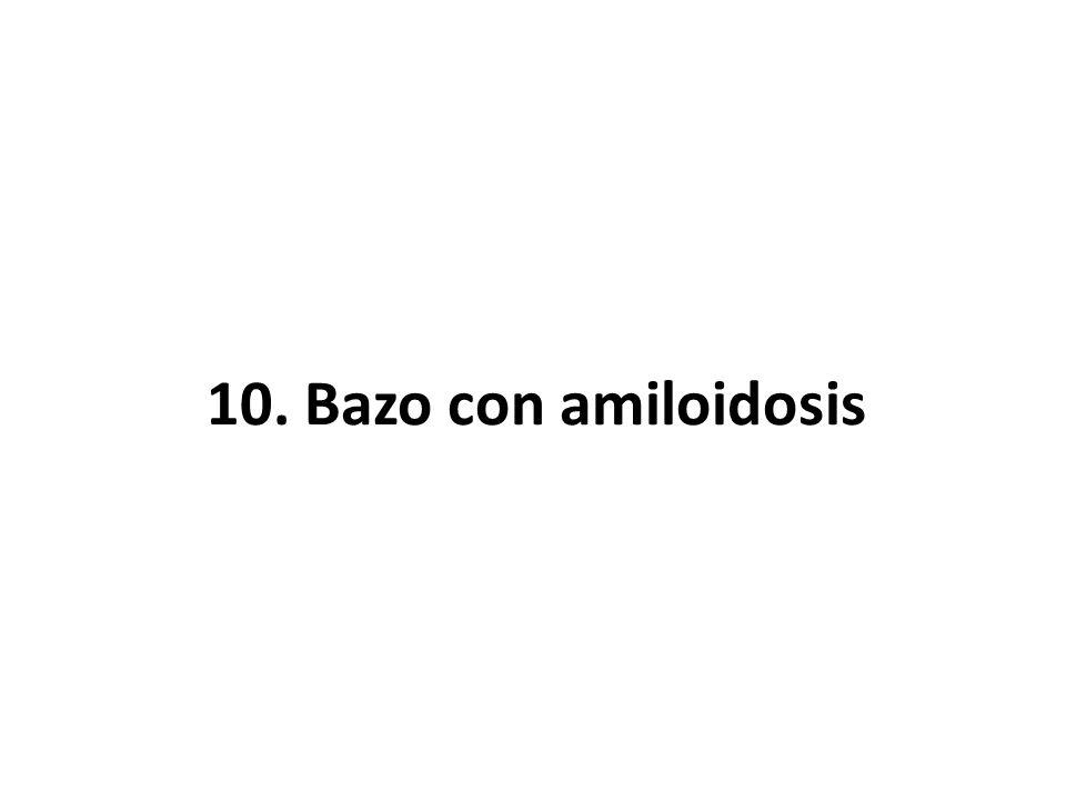 10. Bazo con amiloidosis
