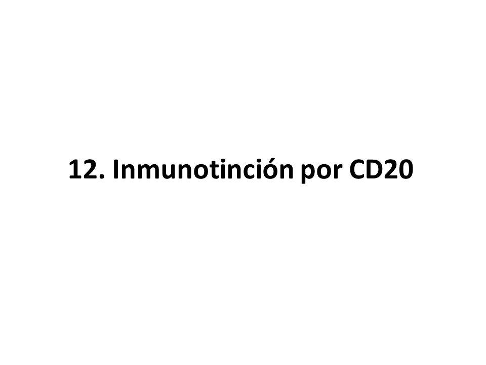 12. Inmunotinción por CD20