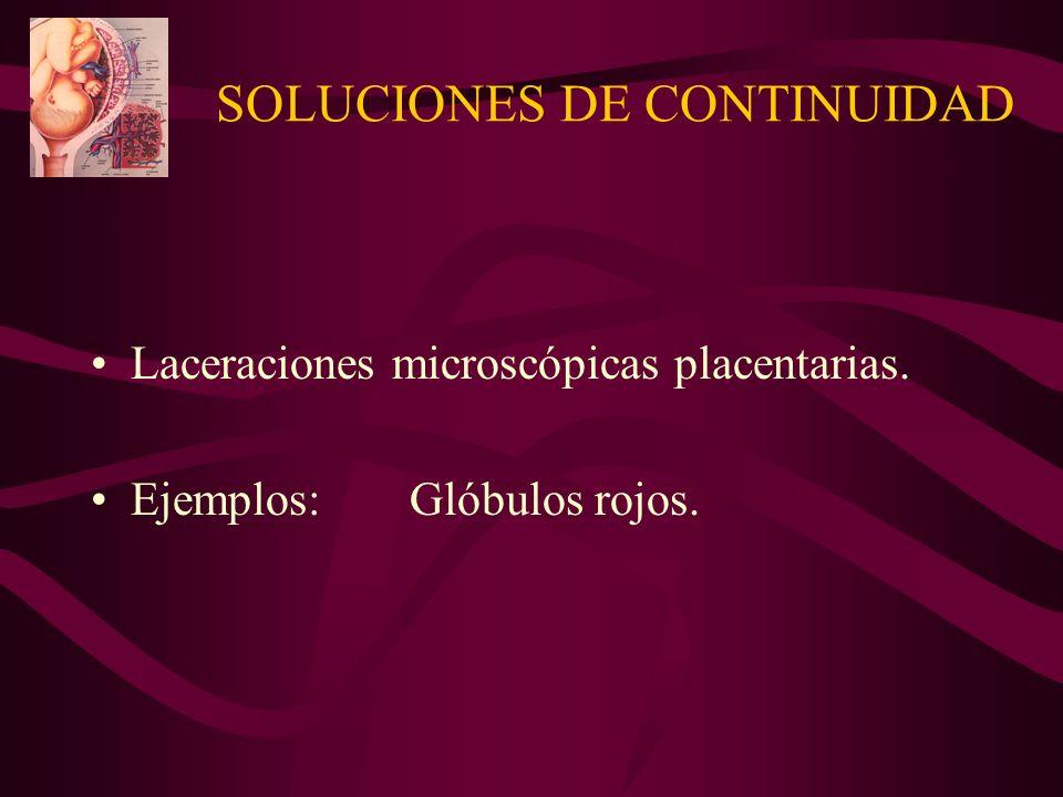 SOLUCIONES DE CONTINUIDAD
