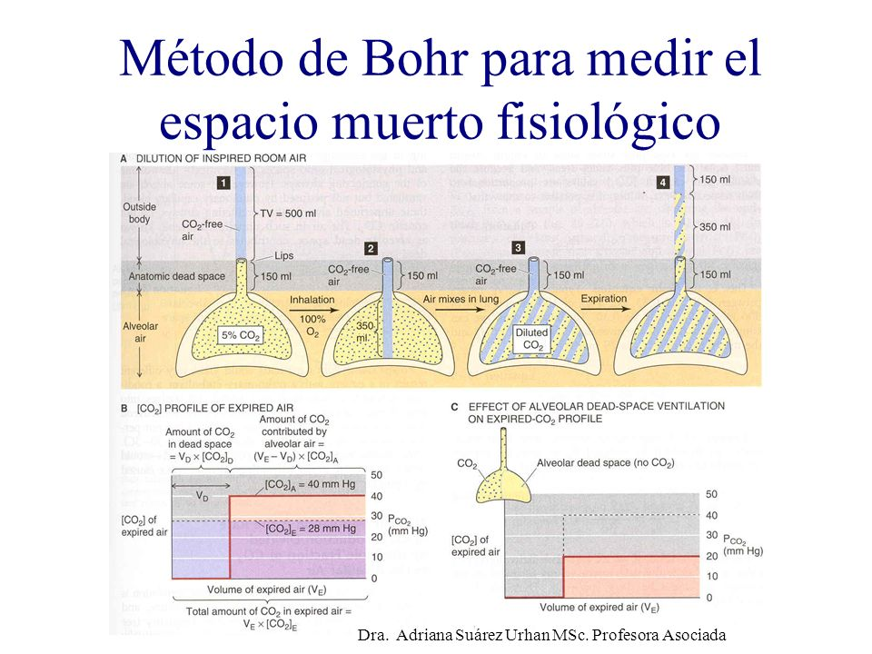 Método de Bohr para medir el espacio muerto fisiológico
