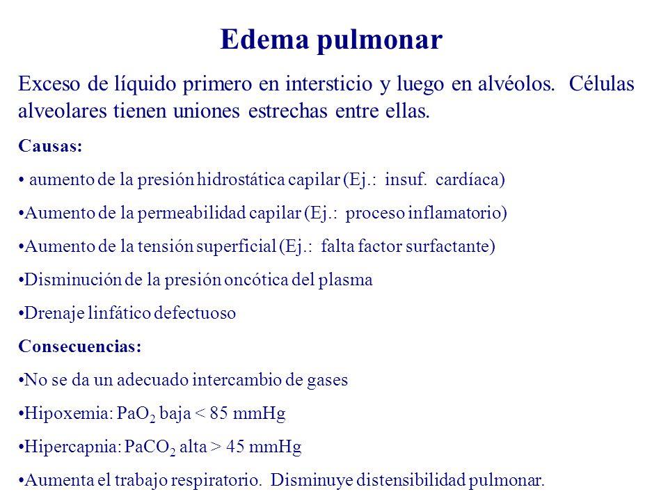 Edema pulmonar Exceso de líquido primero en intersticio y luego en alvéolos. Células alveolares tienen uniones estrechas entre ellas.