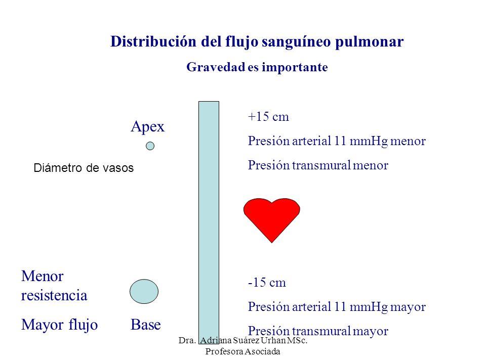 Distribución del flujo sanguíneo pulmonar Gravedad es importante