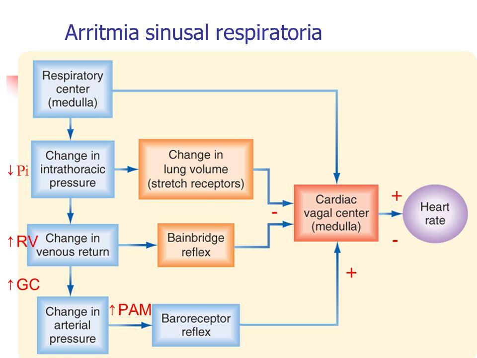 Arritmia sinusal respiratoria