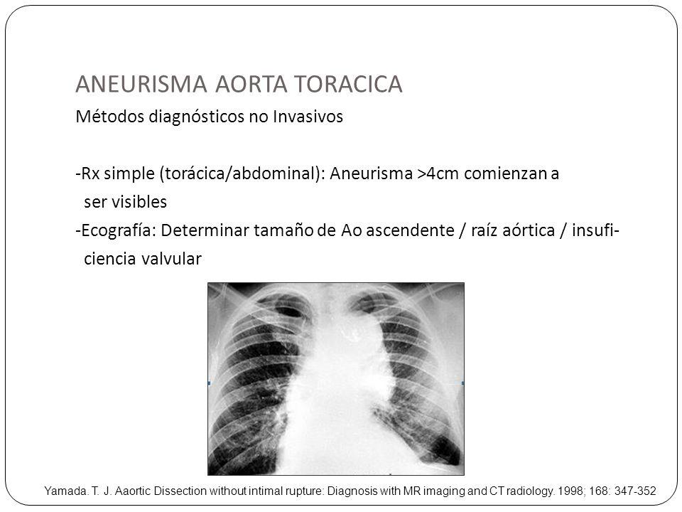 ANEURISMA AORTA TORACICA