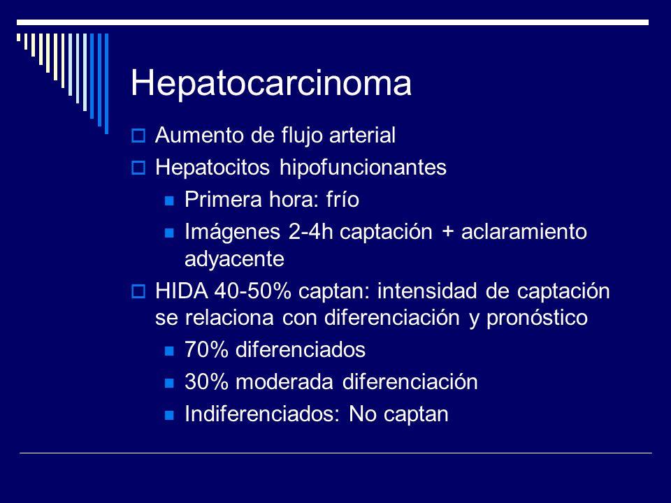 Hepatocarcinoma Aumento de flujo arterial Hepatocitos hipofuncionantes