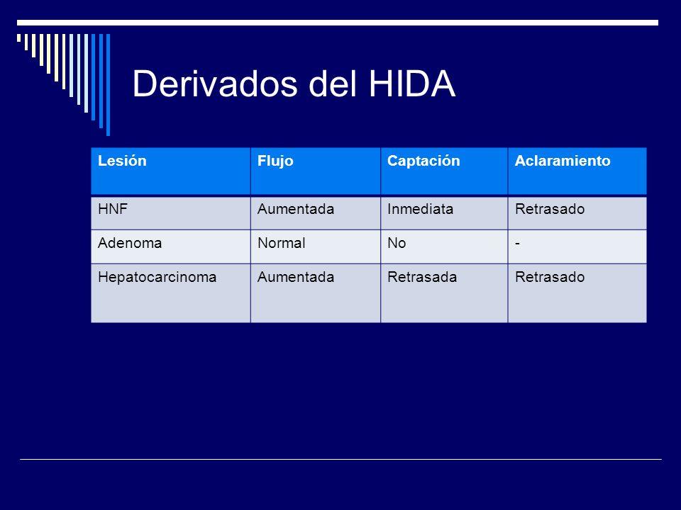 Derivados del HIDA Lesión Flujo Captación Aclaramiento HNF Aumentada