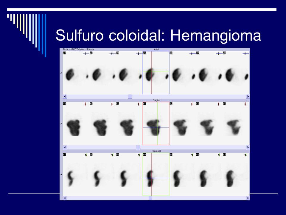 Sulfuro coloidal: Hemangioma