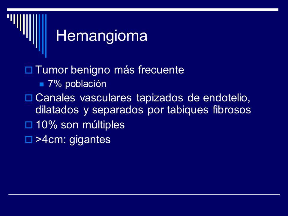 Hemangioma Tumor benigno más frecuente