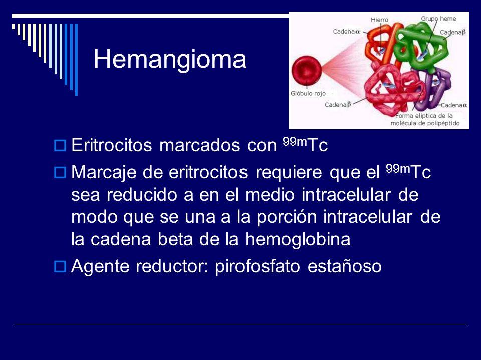 Hemangioma Eritrocitos marcados con 99mTc
