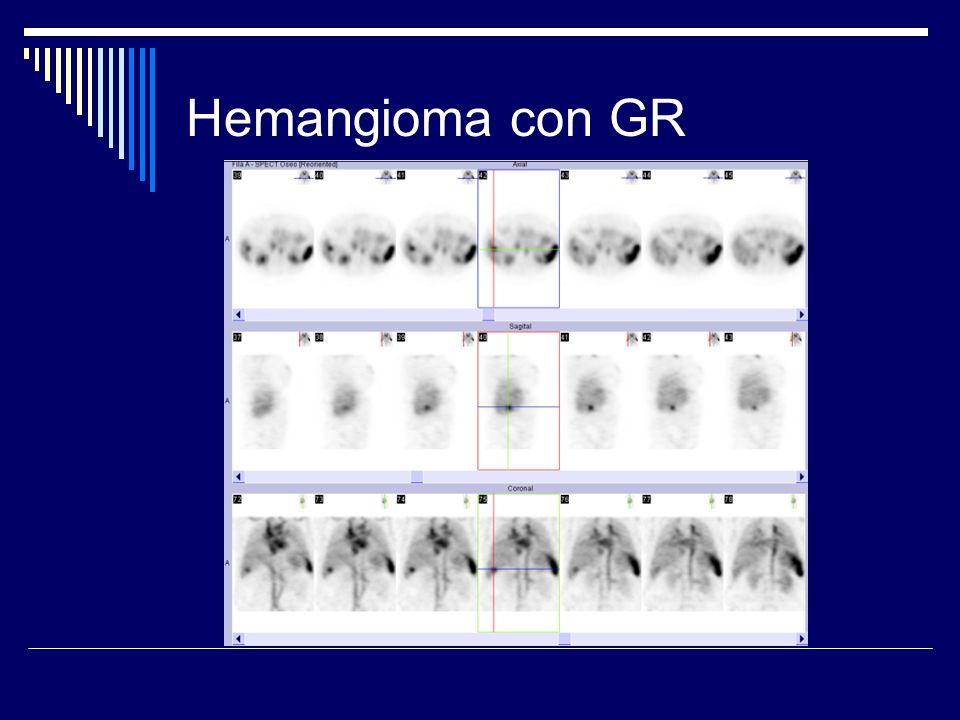 Hemangioma con GR