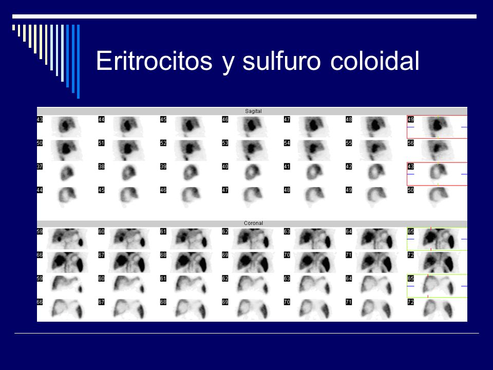 Eritrocitos y sulfuro coloidal