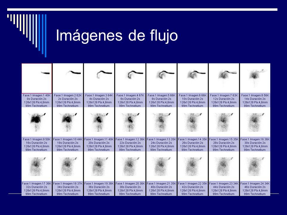 Imágenes de flujo