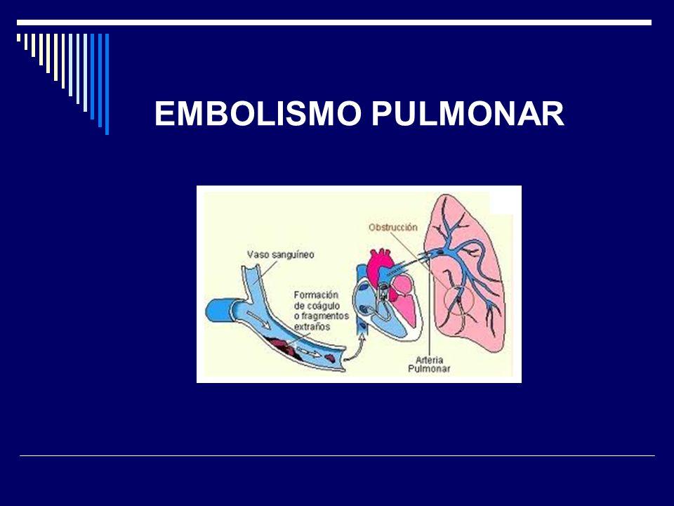 EMBOLISMO PULMONAR 41