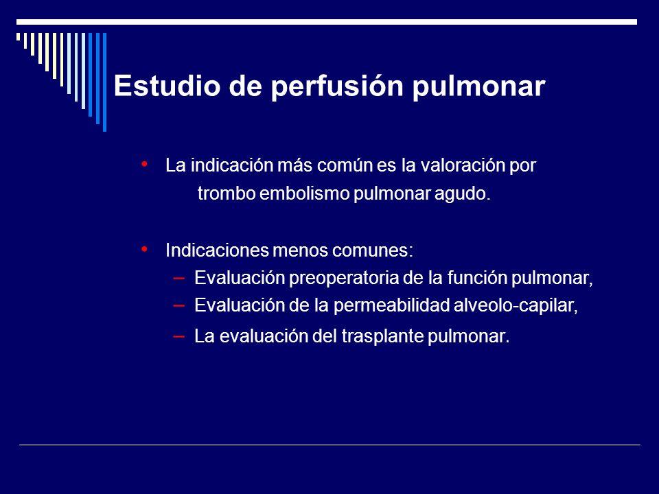 Estudio de perfusión pulmonar