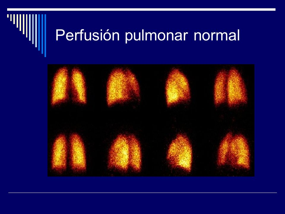 Perfusión pulmonar normal