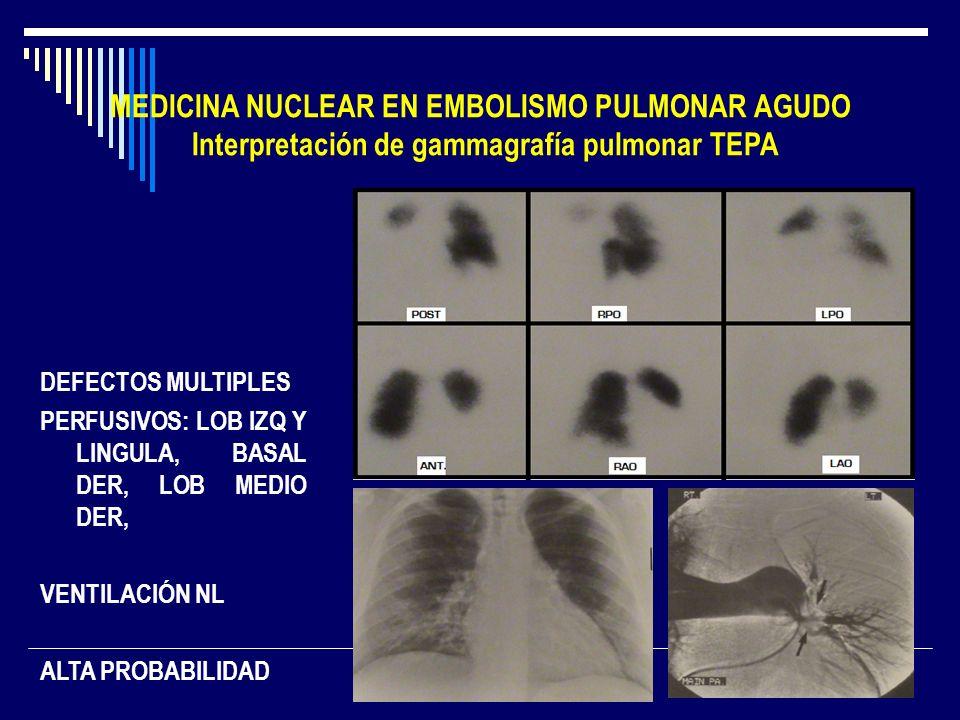 MEDICINA NUCLEAR EN EMBOLISMO PULMONAR AGUDO Interpretación de gammagrafía pulmonar TEPA