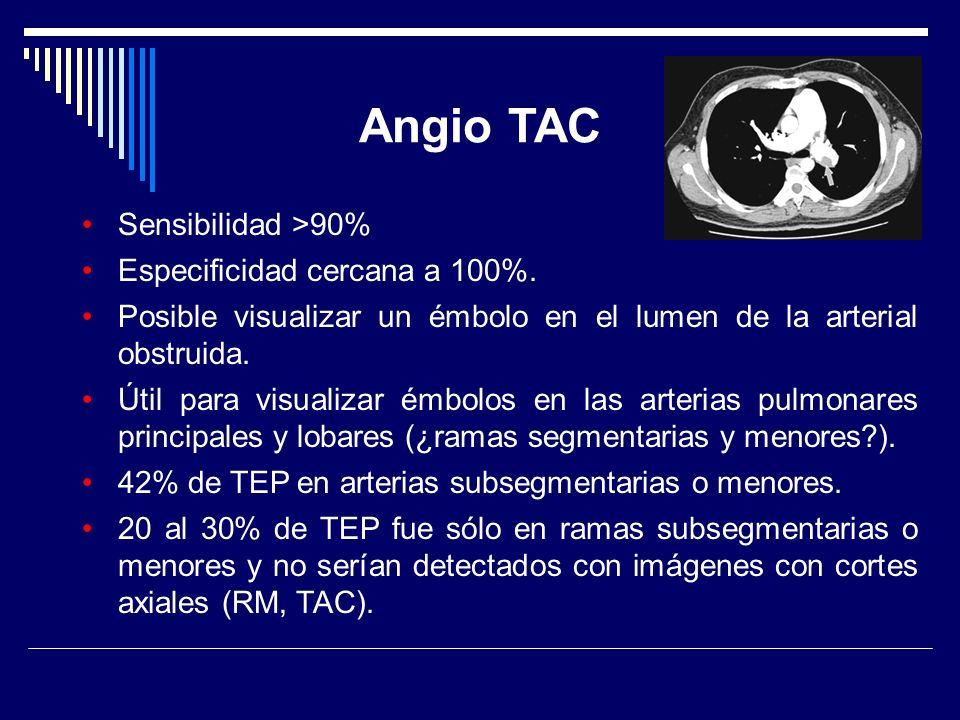 Angio TAC Sensibilidad >90% Especificidad cercana a 100%.