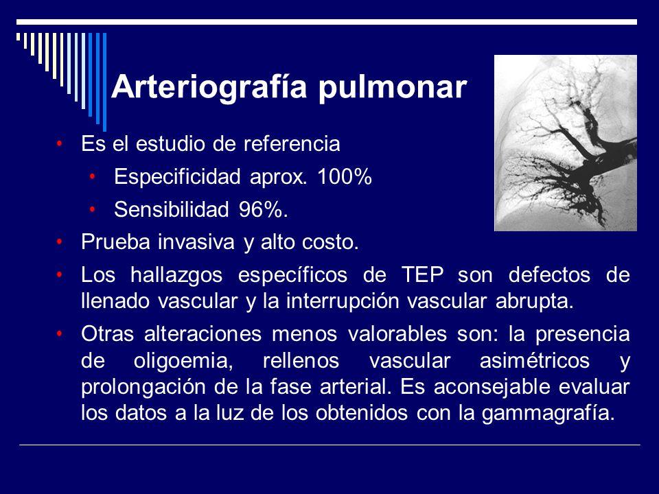 Arteriografía pulmonar