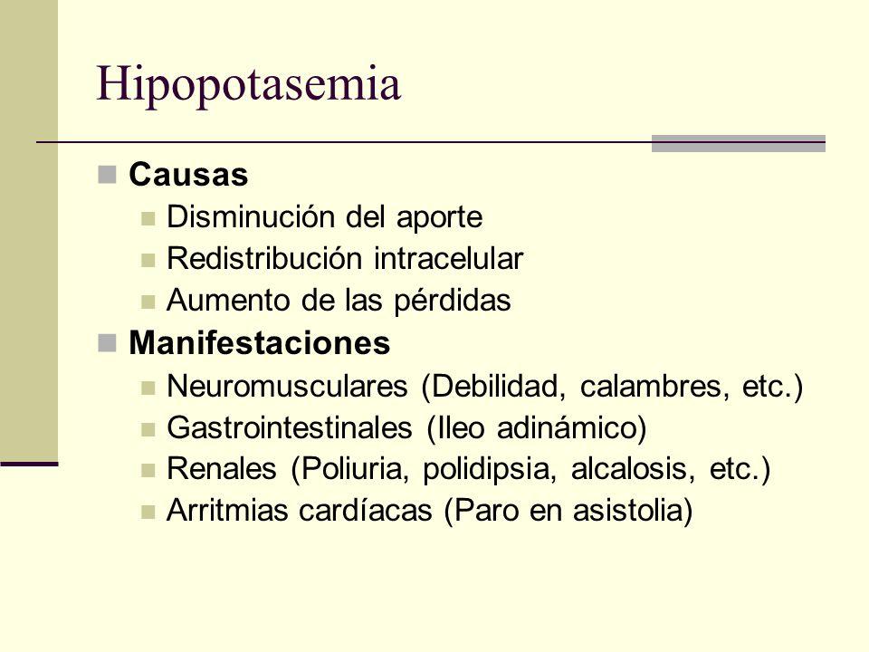 Hipopotasemia Causas Manifestaciones Disminución del aporte