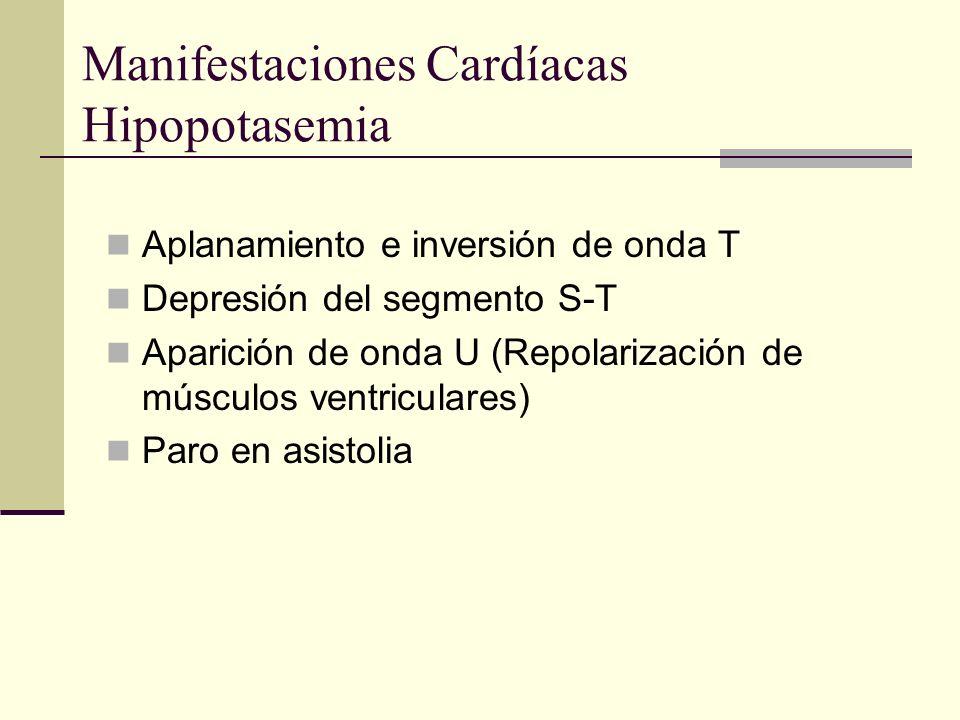 Manifestaciones Cardíacas Hipopotasemia