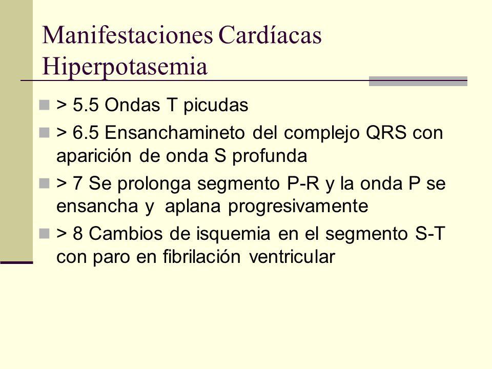 Manifestaciones Cardíacas Hiperpotasemia