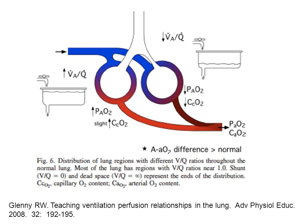 Glenny RW. Teaching ventilation perfusion relationships in the lung