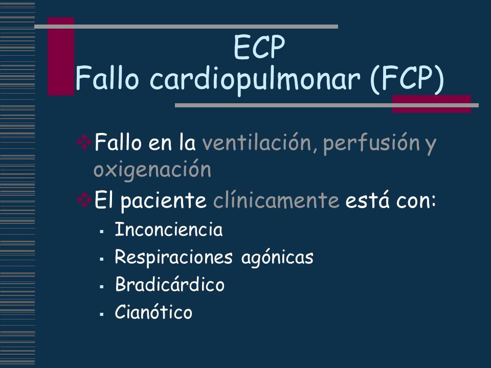 ECP Fallo cardiopulmonar (FCP)