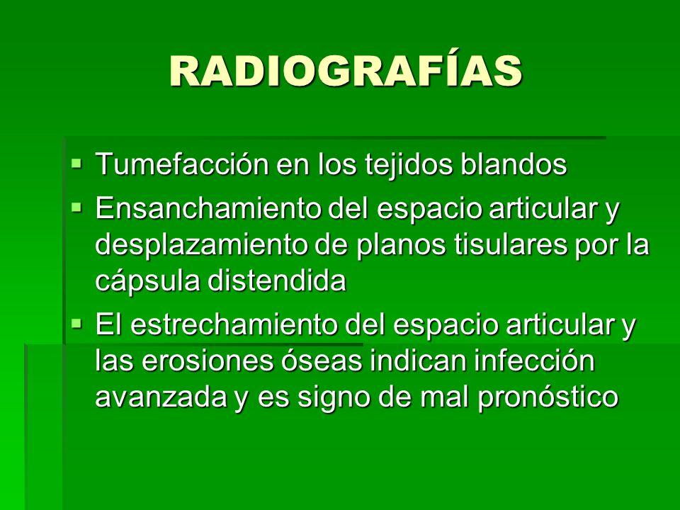 RADIOGRAFÍAS Tumefacción en los tejidos blandos