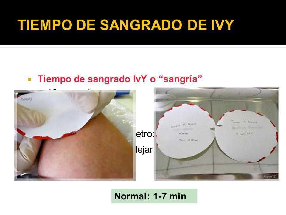 TIEMPO DE SANGRADO DE IVY