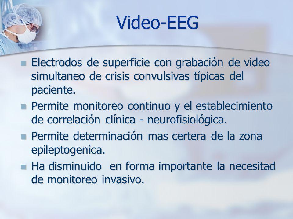 Video-EEGElectrodos de superficie con grabación de video simultaneo de crisis convulsivas típicas del paciente.