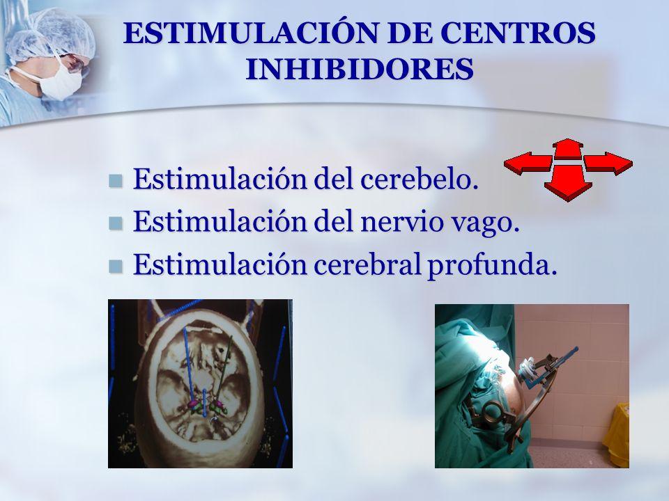 ESTIMULACIÓN DE CENTROS INHIBIDORES
